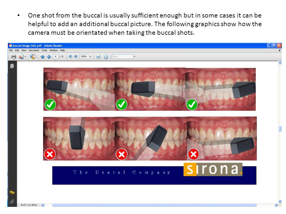 One shot from the buccal is usually sufficient enough but in some cases it can be helpful to add an additional buccal picture.