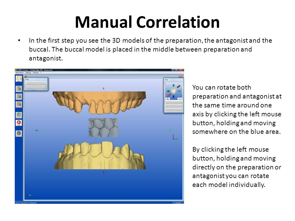 Manual Correlation In the first step you see the 3D models of the preparation, the antagonist and the buccal.