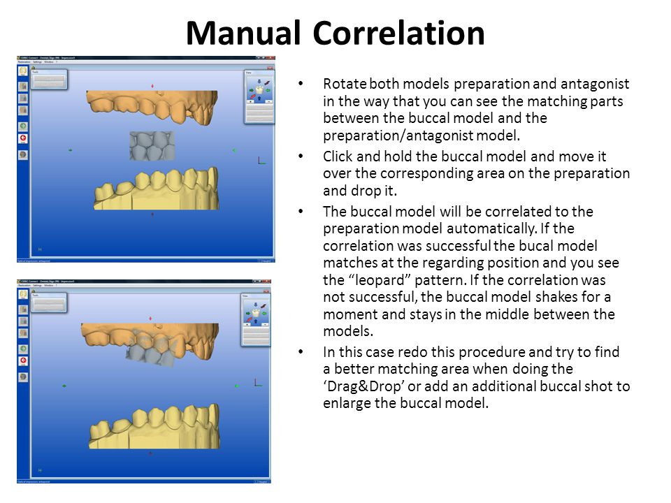 Manual Correlation Rotate both models preparation and antagonist in the way that you can see the matching parts between the buccal model and the preparation/antagonist model.