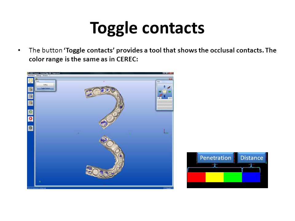 Toggle contacts The button 'Toggle contacts' provides a tool that shows the occlusal contacts.