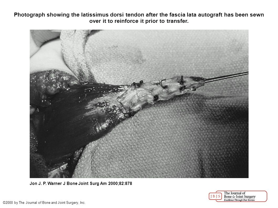 Photograph showing the latissimus dorsi tendon after the fascia lata autograft has been sewn over it to reinforce it prior to transfer. Jon J. P. Warn