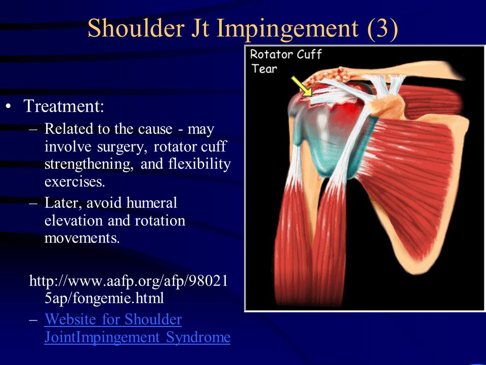 Shoulder Jt Impingement (3) Treatment: –Related to the cause - may involve surgery, rotator cuff strengthening, and flexibility exercises.