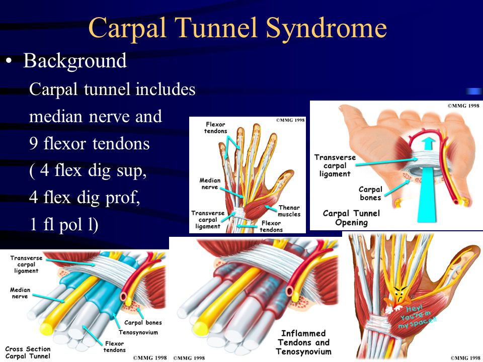 Carpal Tunnel Syndrome Background Carpal tunnel includes median nerve and 9 flexor tendons ( 4 flex dig sup, 4 flex dig prof, 1 fl pol l)