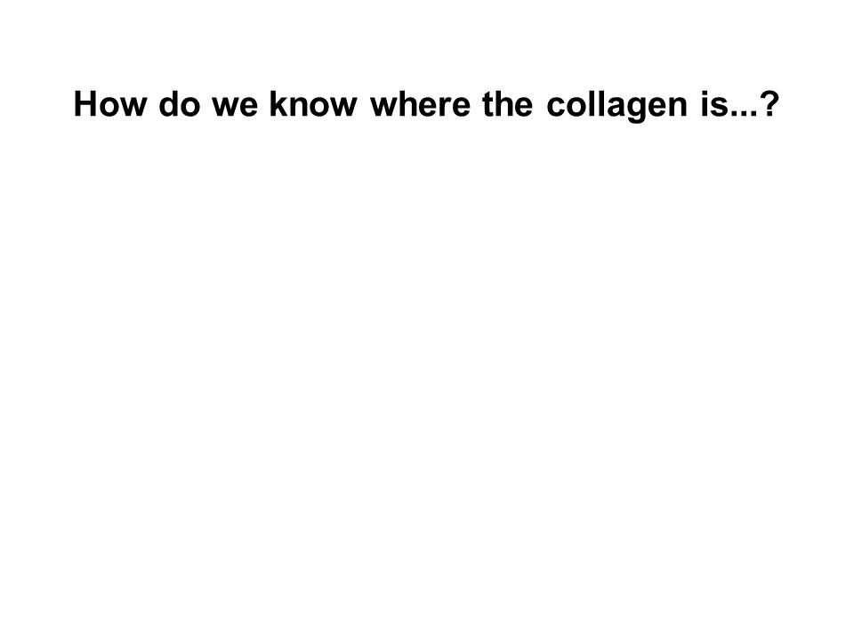 How do we know where the collagen is...