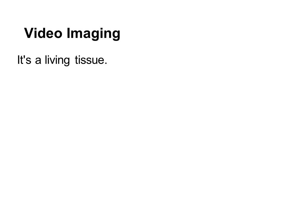 Video Imaging It s a living tissue.