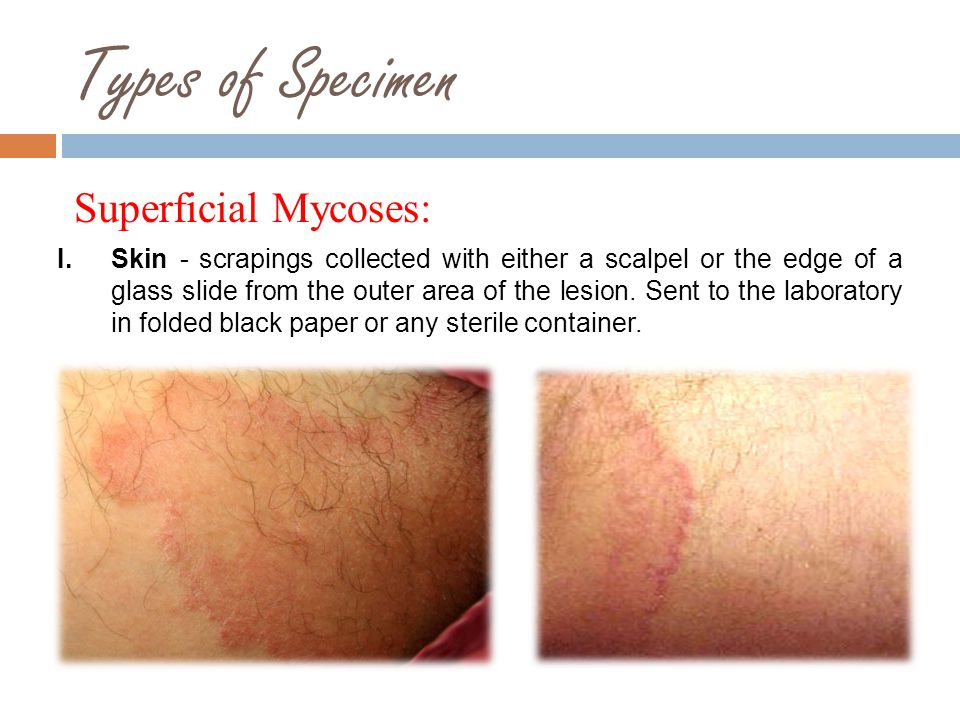 Types of Specimen Superficial Mycoses: II.Hair - specimens scraped from the scalp with a scalpel or hairs plucked with forceps.