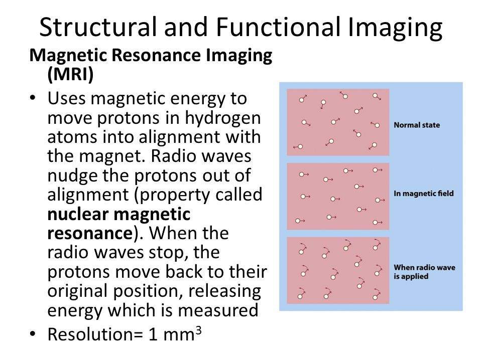 Structural and Functional Imaging Magnetic Resonance Imaging (MRI) Uses magnetic energy to move protons in hydrogen atoms into alignment with the magnet.
