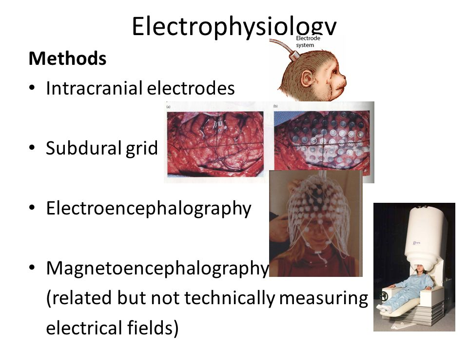Electrophysiology Methods Intracranial electrodes Subdural grid Electroencephalography Magnetoencephalography (related but not technically measuring electrical fields)