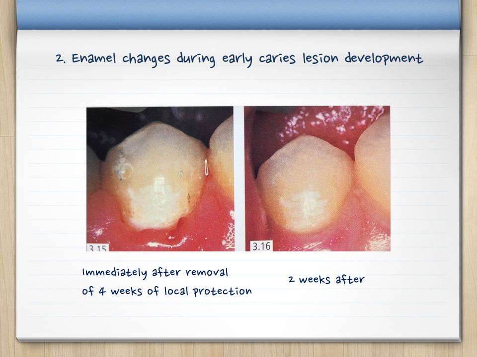 Immediately after removal of 4 weeks of local protection 2 weeks after 2. Enamel changes during early caries lesion development