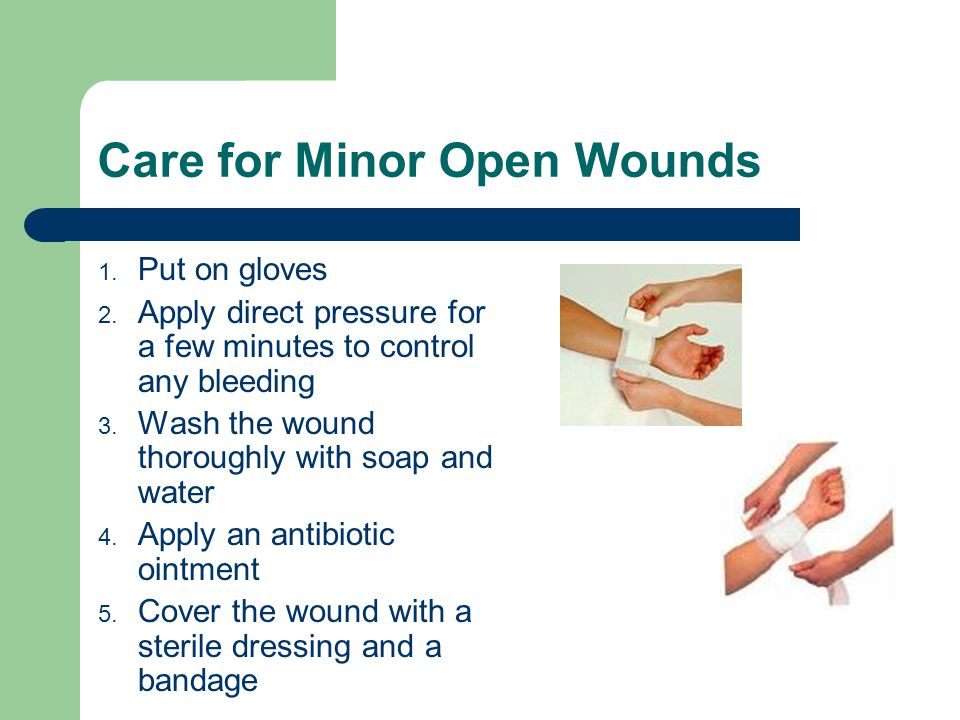 Care for Minor Open Wounds 1. Put on gloves 2. Apply direct pressure for a few minutes to control any bleeding 3. Wash the wound thoroughly with soap