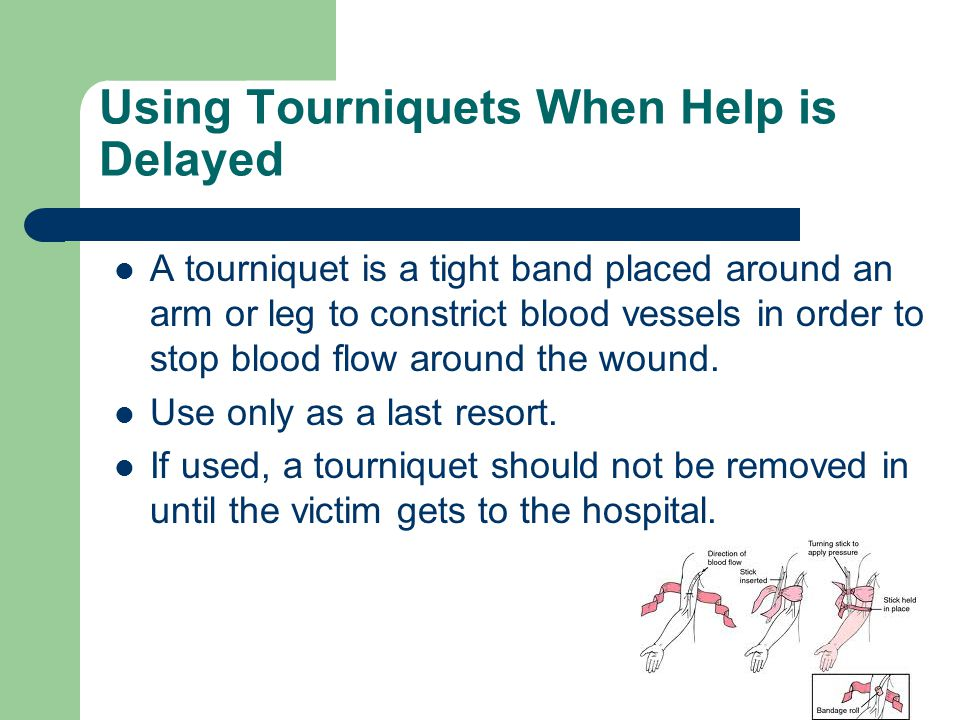 Using Tourniquets When Help is Delayed A tourniquet is a tight band placed around an arm or leg to constrict blood vessels in order to stop blood flow
