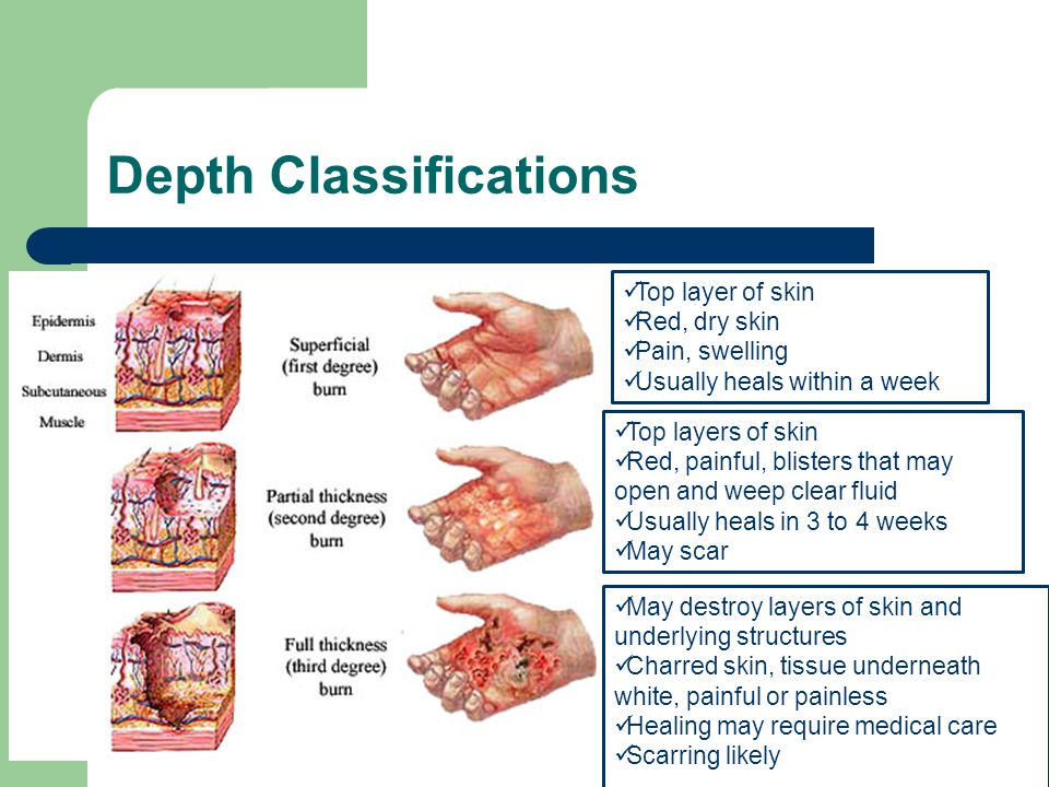 Depth Classifications Top layer of skin Red, dry skin Pain, swelling Usually heals within a week Top layers of skin Red, painful, blisters that may op
