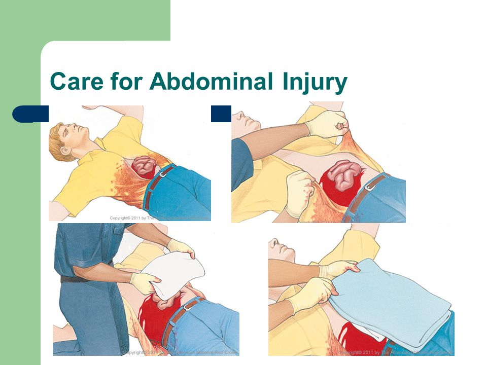 Care for Abdominal Injury