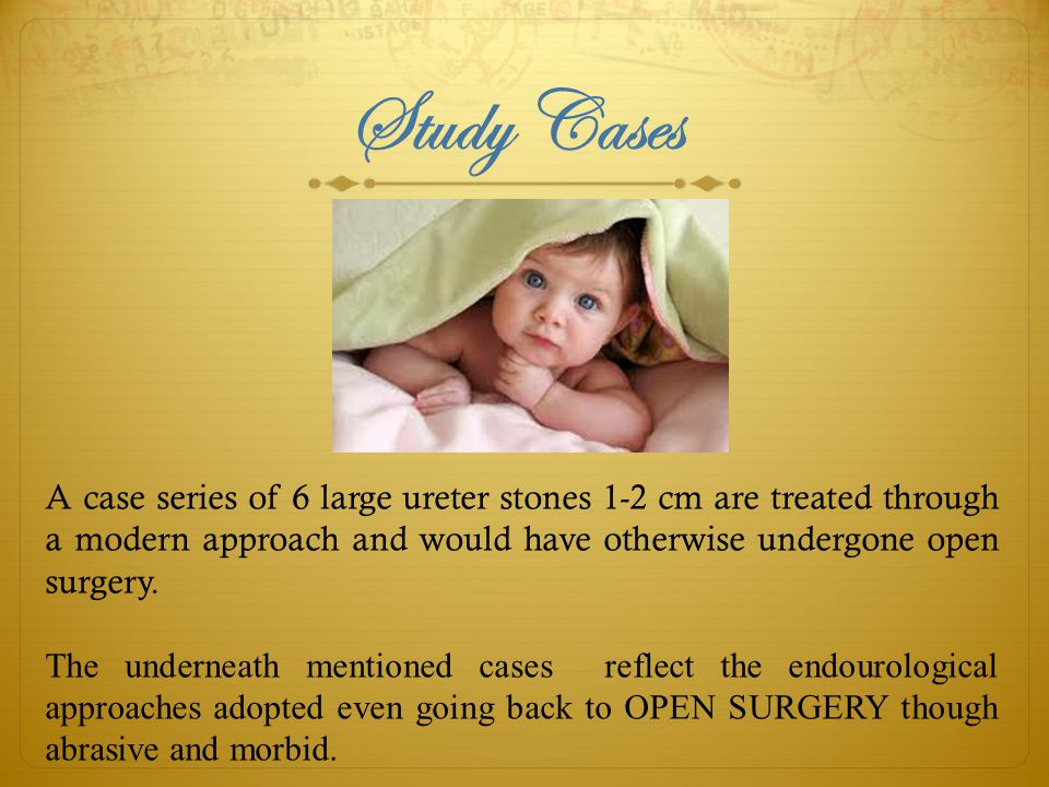 Study Cases A case series of 6 large ureter stones 1-2 cm are treated through a modern approach and would have otherwise undergone open surgery.