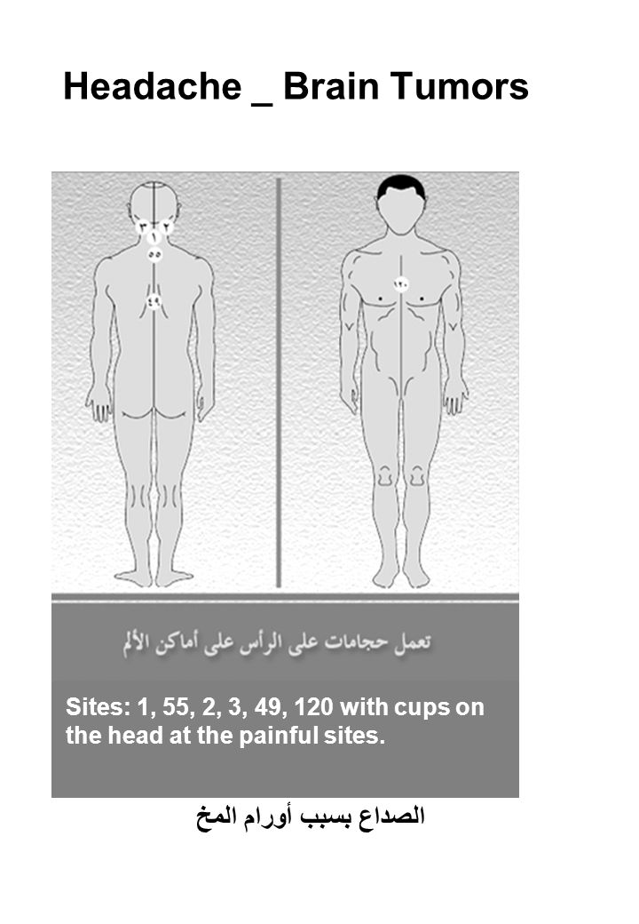 Headache _ Brain Tumors Sites: 1, 55, 2, 3, 49, 120 with cups on the head at the painful sites.