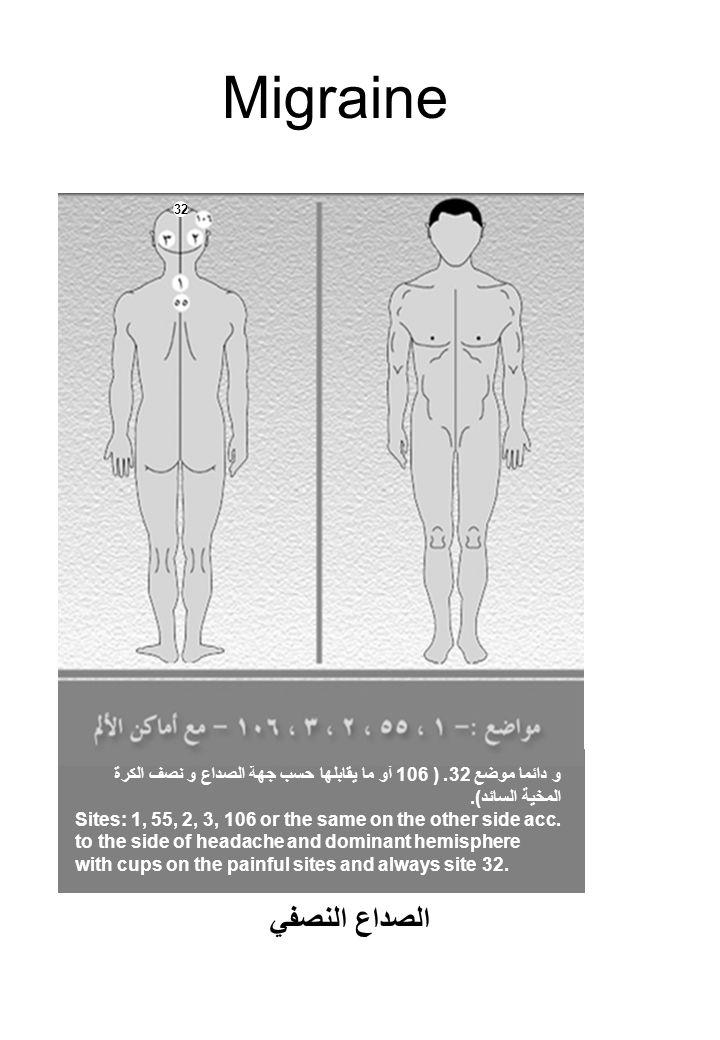 Migraine و دائما موضع 32. ( 106 أو ما يقابلها حسب جهة الصداع و نصف الكرة المخية السائد).