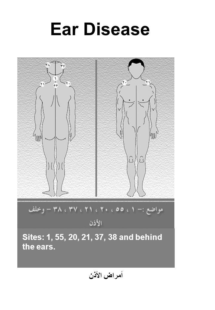 Ear Disease Sites: 1, 55, 20, 21, 37, 38 and behind the ears. أمراض الأذن