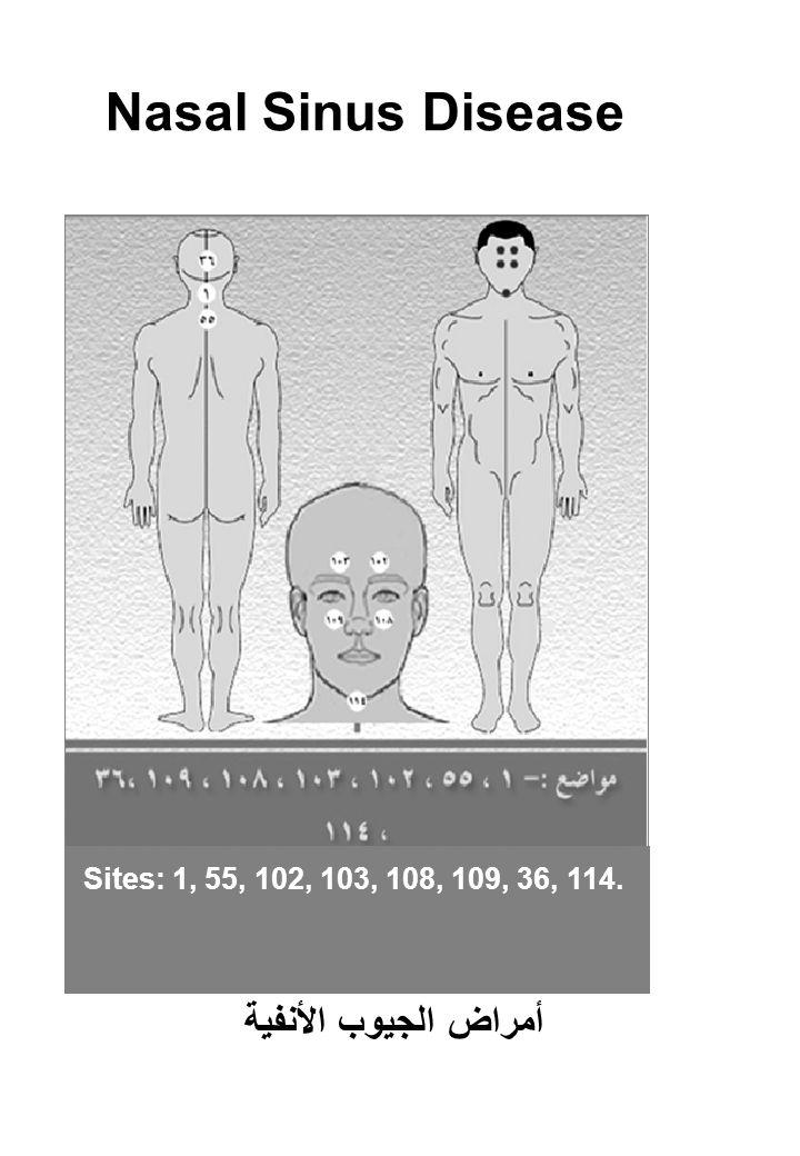 Nasal Sinus Disease أمراض الجيوب الأنفية Sites: 1, 55, 102, 103, 108, 109, 36, 114.
