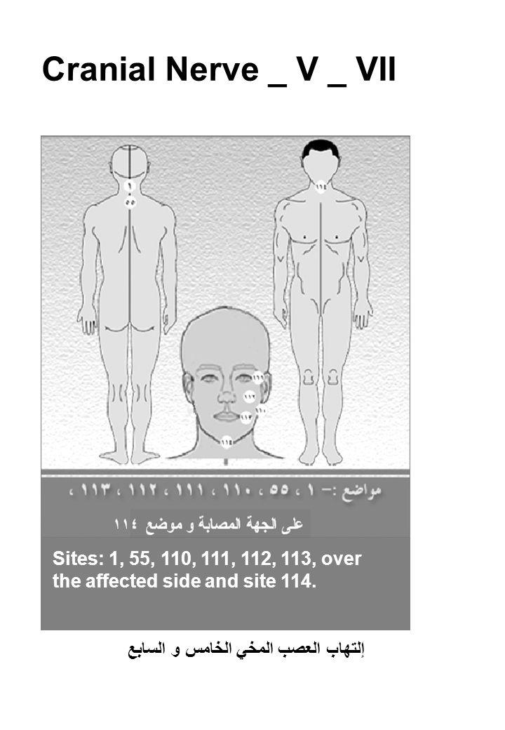 Cranial Nerve _ V _ VII إلتهاب العصب المخي الخامس و السابع Sites: 1, 55, 110, 111, 112, 113, over the affected side and site 114.