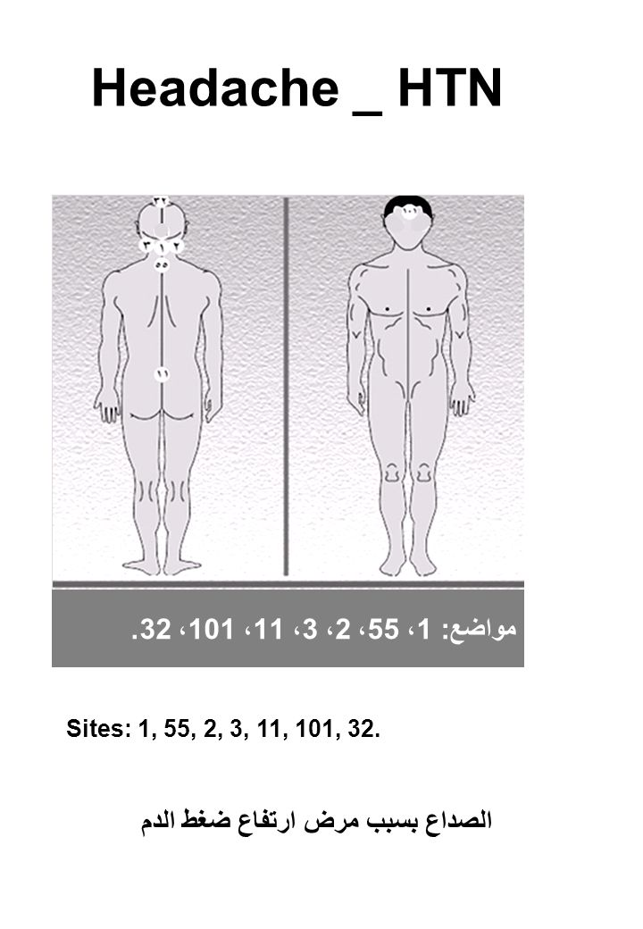 Headache _ HTN Sites: 1, 55, 2, 3, 11, 101, 32.