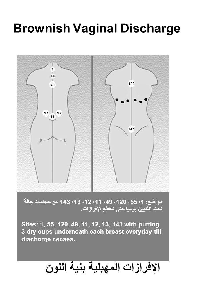 Brownish Vaginal Discharge مواضع: 1، 55، 120، 49، 11، 12، 13، 143 مع حجامات جافة تحت الثديين يوميا حتى تنقطع الإفرازات.