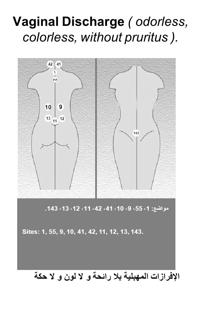 Vaginal Discharge ( odorless, colorless, without pruritus ).