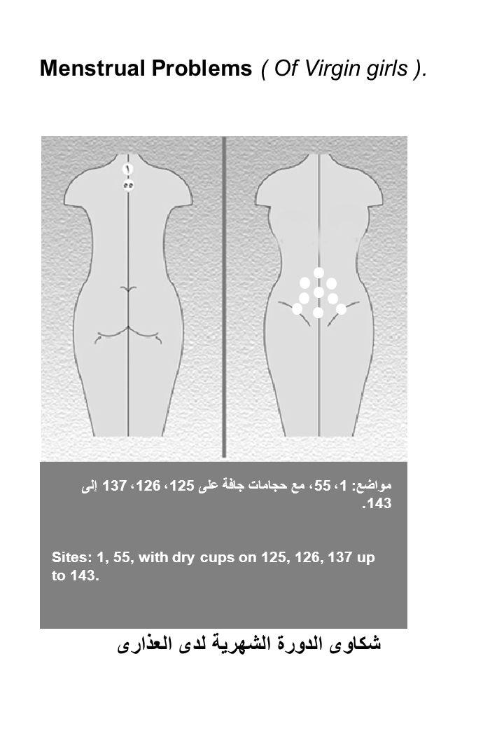 Menstrual Problems ( Of Virgin girls ). مواضع: 1، 55، مع حجامات جافة على 125، 126، 137 إلى 143.