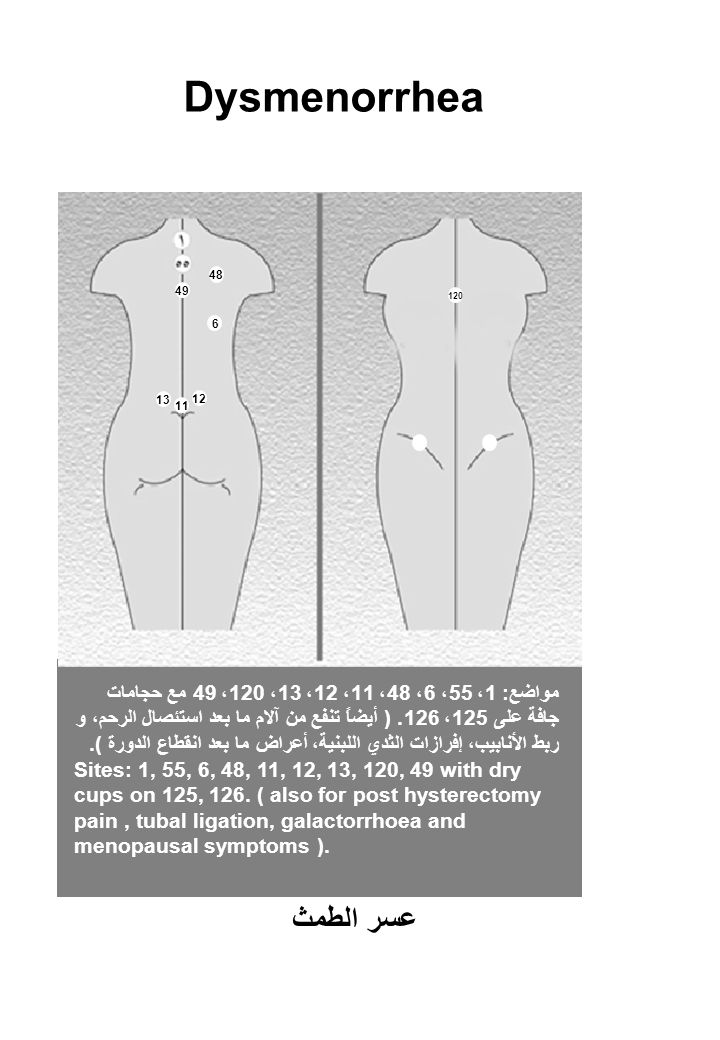 Dysmenorrhea مواضع: 1، 55، 6، 48، 11، 12، 13، 120، 49 مع حجامات جافة على 125، 126.
