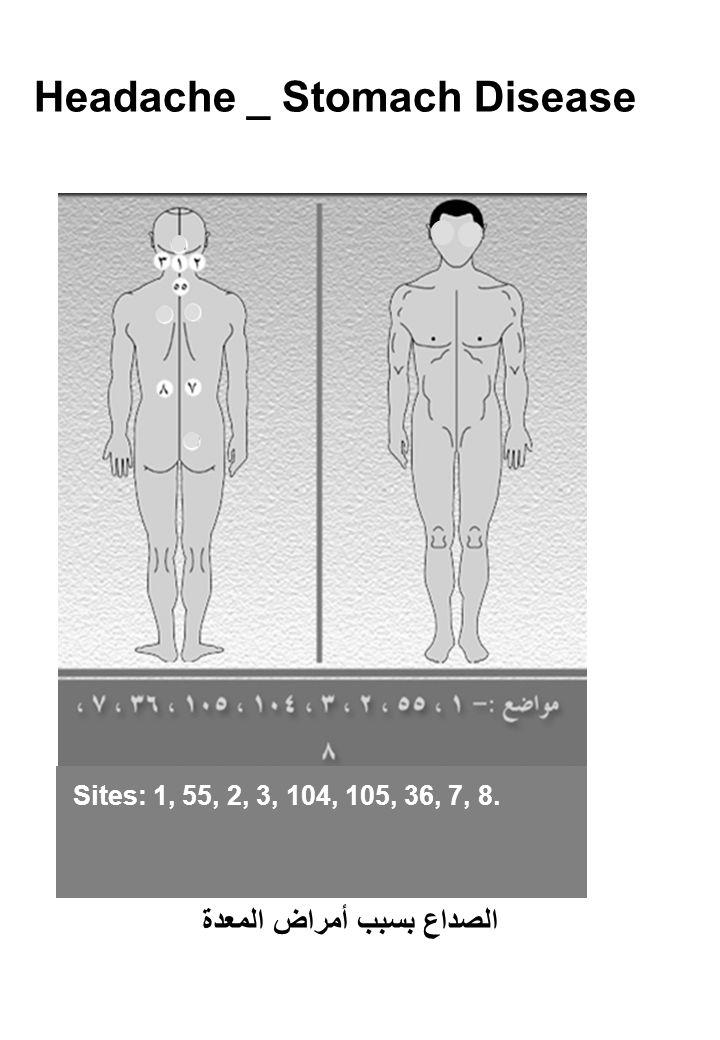 Headache _ Stomach Disease Sites: 1, 55, 2, 3, 104, 105, 36, 7, 8. الصداع بسبب أمراض المعدة