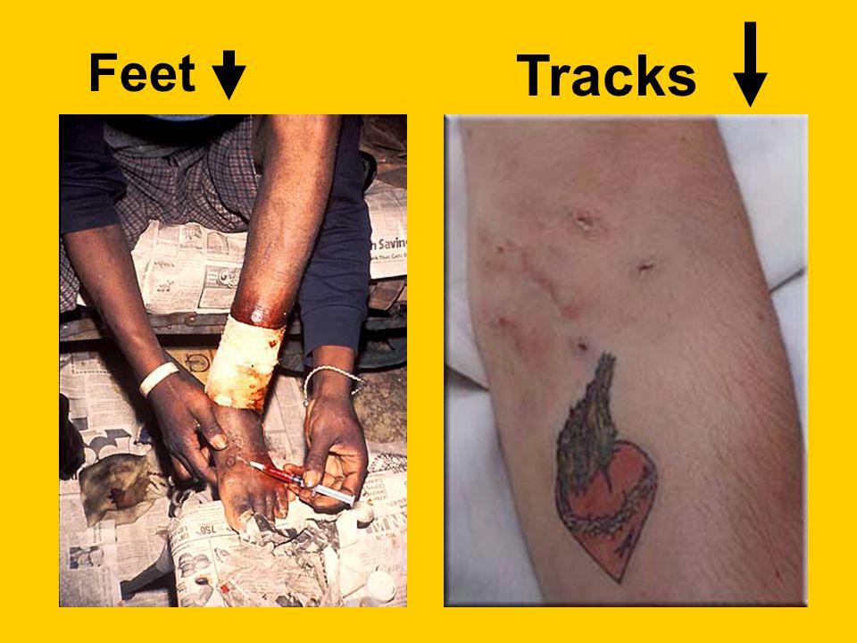 Feet Tracks