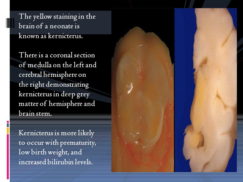 The yellow staining in the brain of a neonate is known as kernicterus.