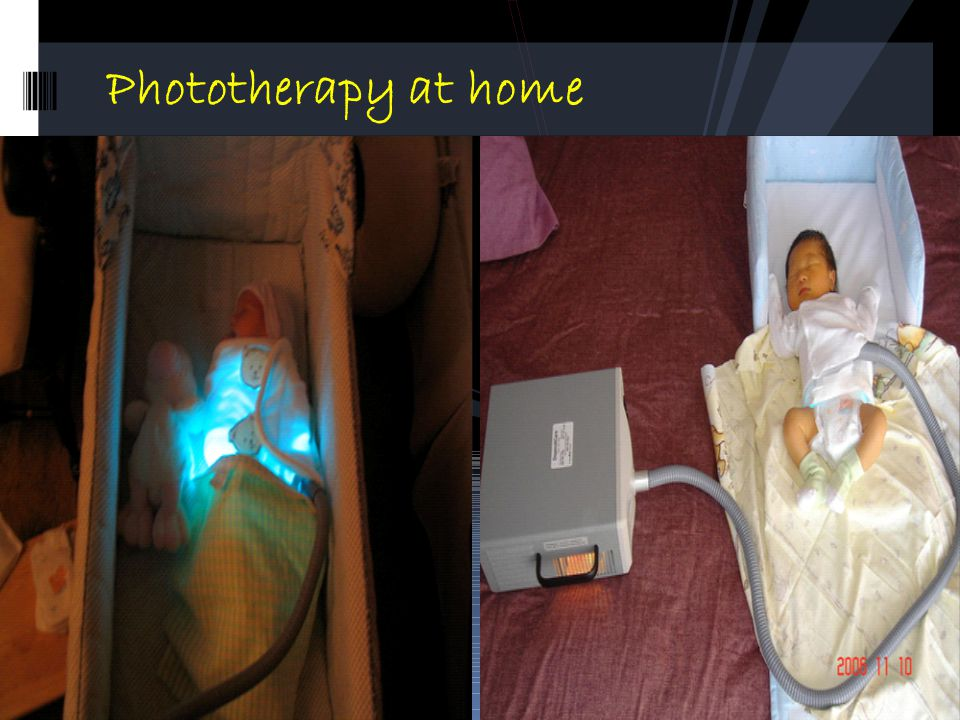 Phototherapy at home