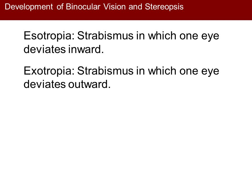 Development of Binocular Vision and Stereopsis Esotropia: Strabismus in which one eye deviates inward. Exotropia: Strabismus in which one eye deviates