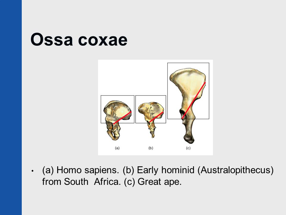 Ossa coxae (a) Homo sapiens. (b) Early hominid (Australopithecus) from South Africa. (c) Great ape.