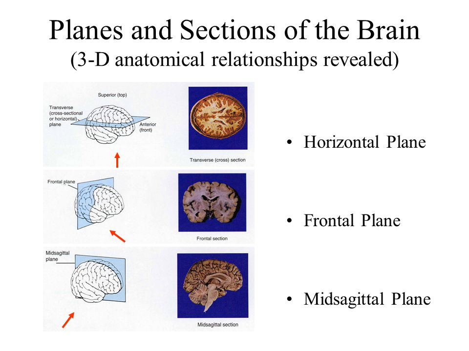 Planes and Sections of the Brain (3-D anatomical relationships revealed) Horizontal Plane Frontal Plane Midsagittal Plane