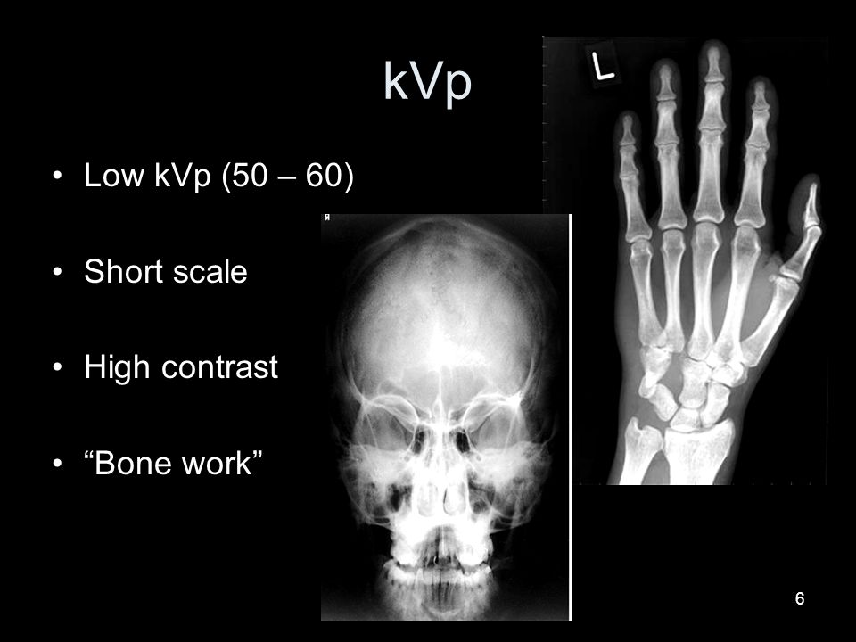 kVp Low kVp (50 – 60) Short scale High contrast Bone work 6