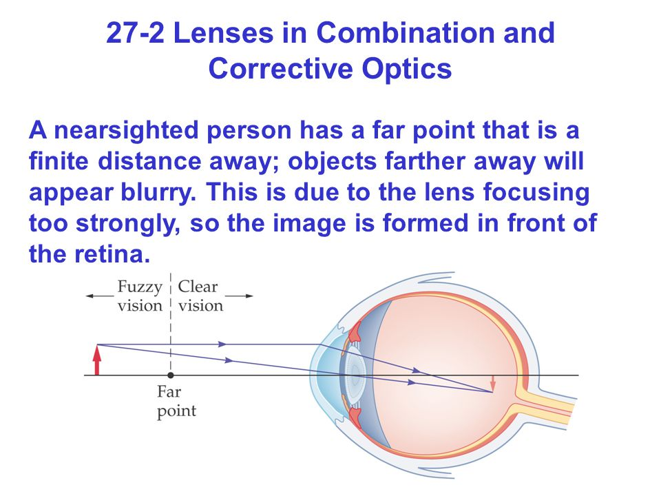 27-2 Lenses in Combination and Corrective Optics A nearsighted person has a far point that is a finite distance away; objects farther away will appear