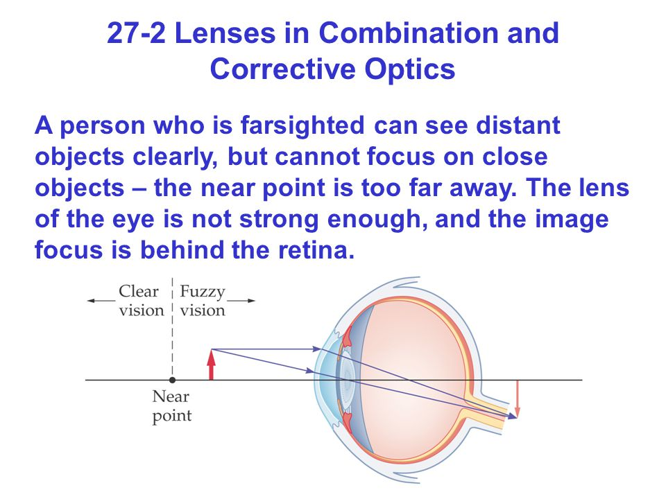 27-2 Lenses in Combination and Corrective Optics A person who is farsighted can see distant objects clearly, but cannot focus on close objects – the n