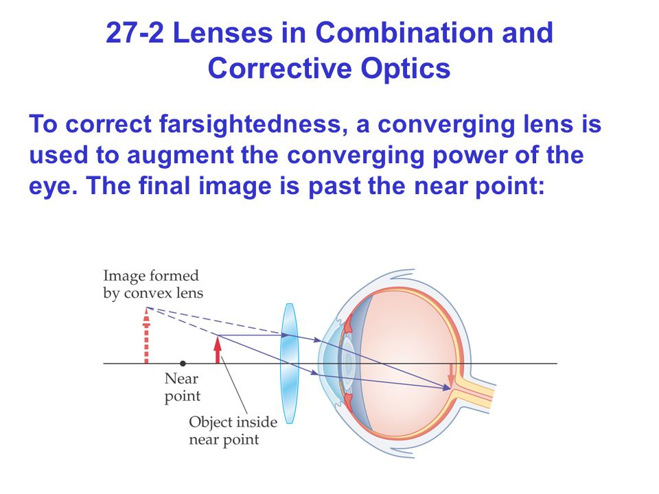27-2 Lenses in Combination and Corrective Optics To correct farsightedness, a converging lens is used to augment the converging power of the eye. The
