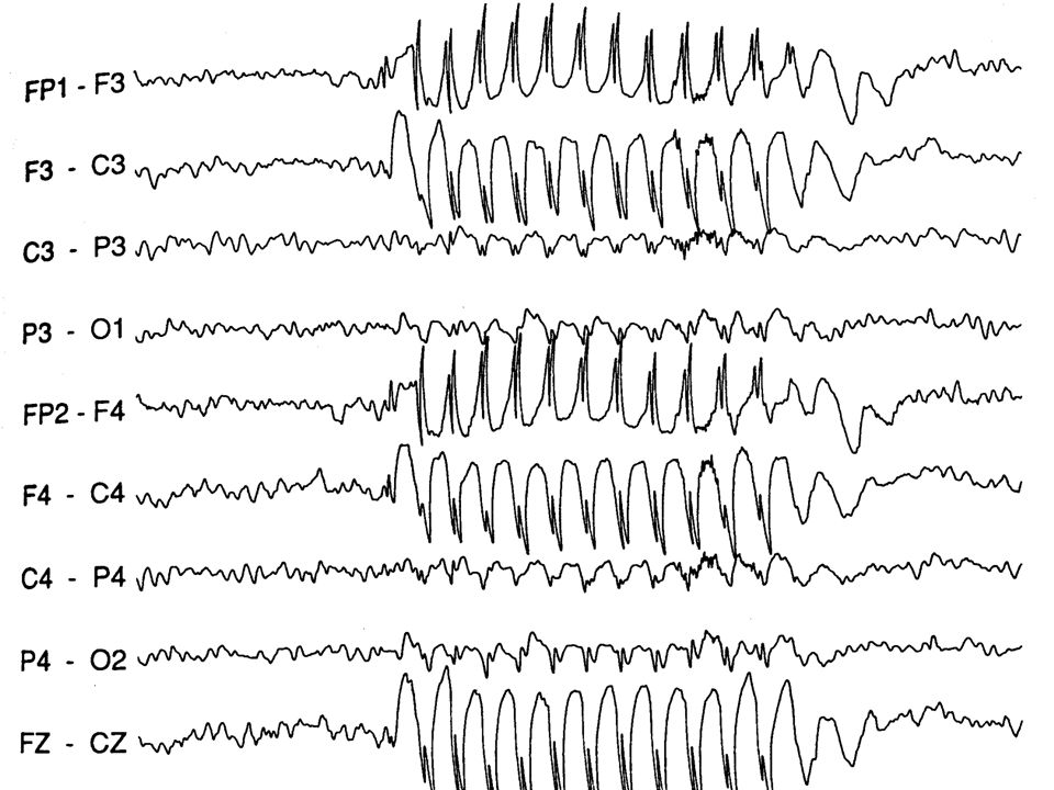 Event-related potentials (ERPs) Recordings of the brain's activity that are linked to the occurrence of some event Gives an idea of when processes occur in the brain As time passes after a stimulus, the active group of neurons changes and the EEG waveforms change accordingly The waveform can be divided into components, characteristic portions of the wave that have been linked to certain processes