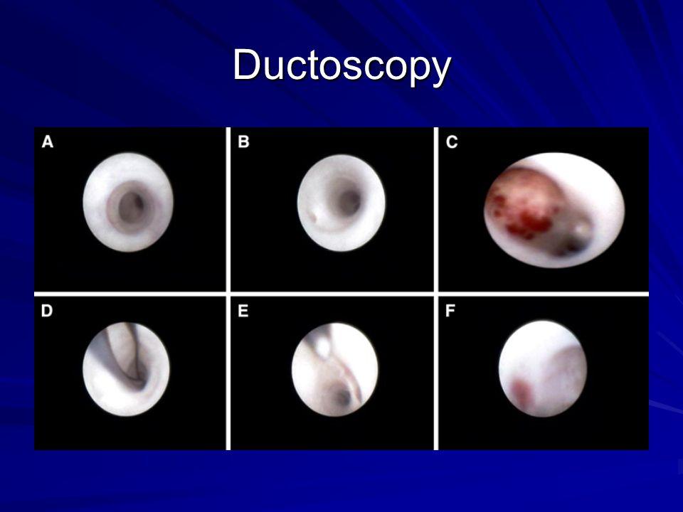 Ductoscopy