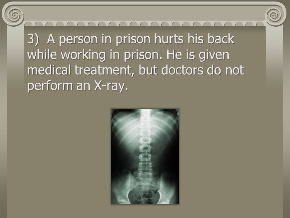 3) A person in prison hurts his back while working in prison.