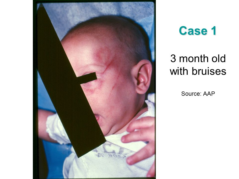 Case 1 3 month old with bruises Source: AAP
