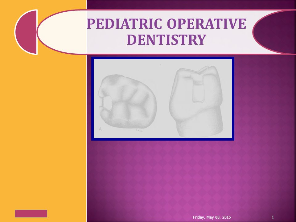 (6) Buccal and lingual walls: should be converging so making the cavity retentive.