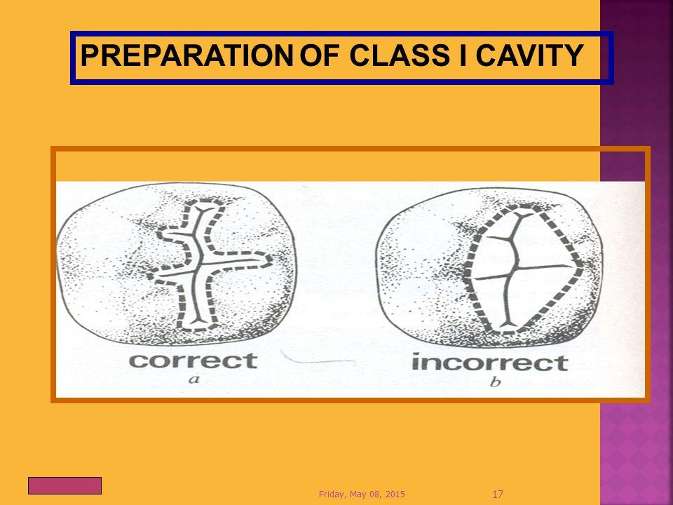 Friday, May 08, 2015 17 PREPARATION OF CLASS I CAVITY