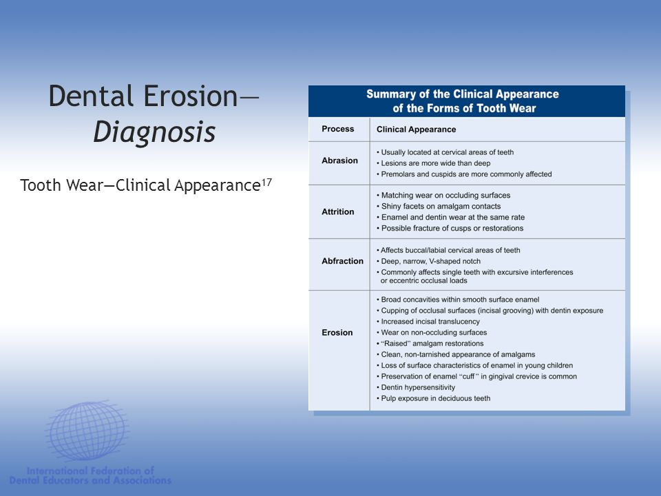 Dental Erosion— Diagnosis Tooth Wear—Clinical Appearance 17