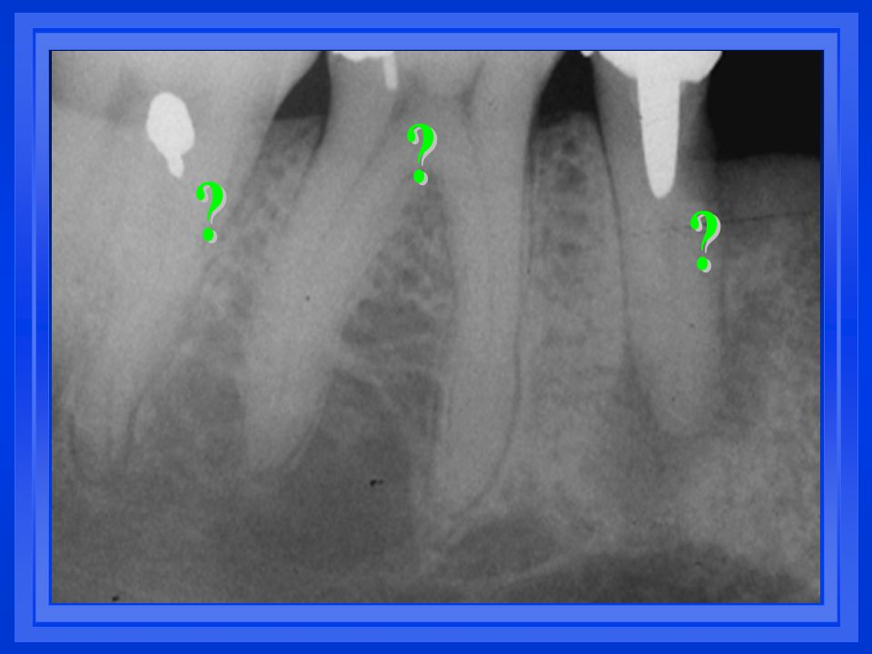 Considerations for posterior teeth Virtually all posterior teeth which have received endodontic therapy are in turn recommended for a cast restoration coronally.