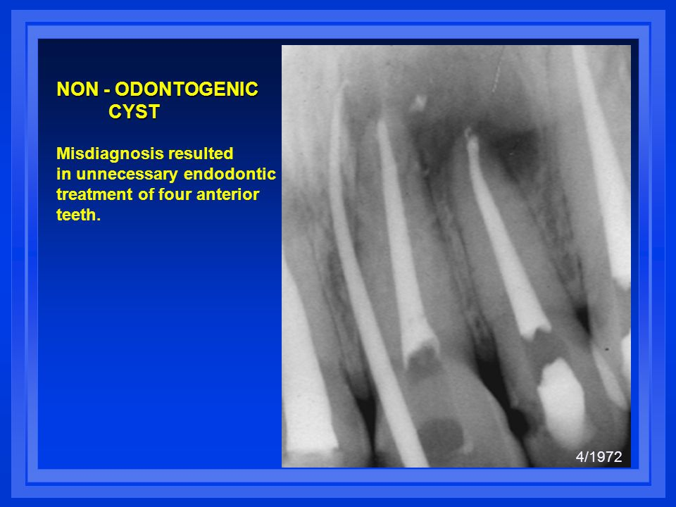 Considerations for Anterior Teeth A metal post is not recommended in anterior teeth which do not require complete coverage restorations.