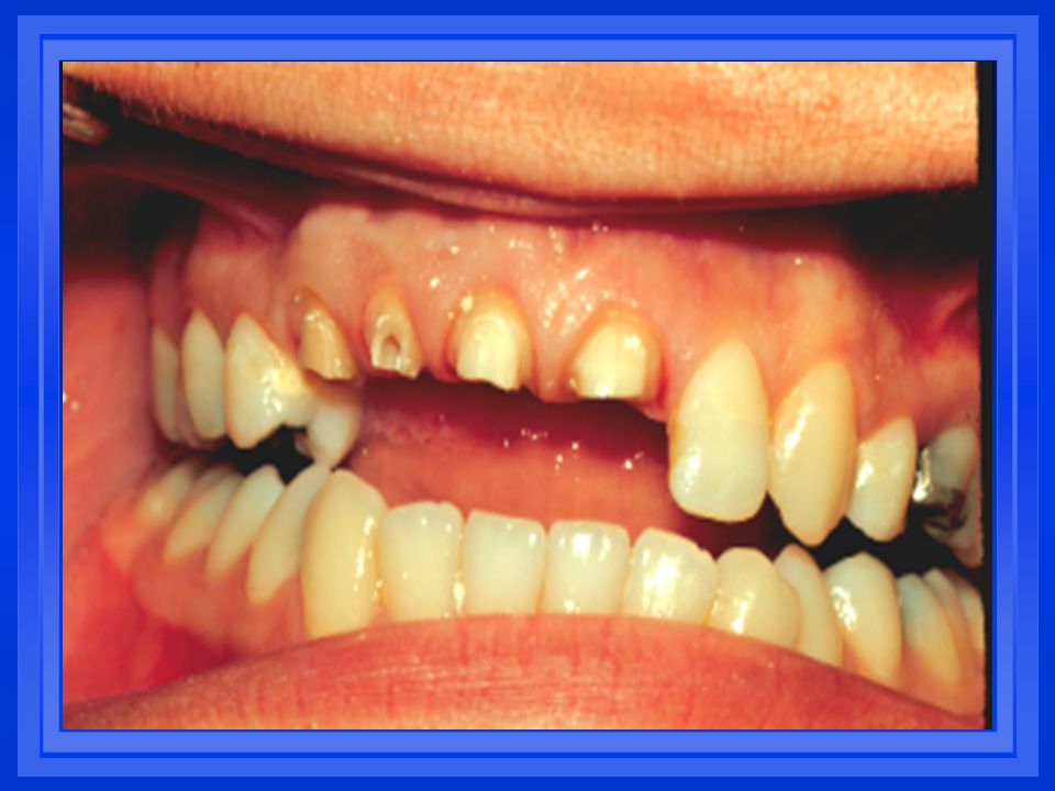 The incisal edge of lower anterior teeth function across the lobes of opposing upper incisors