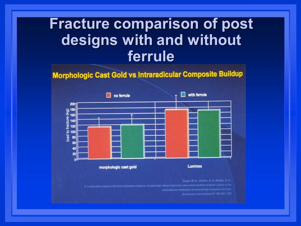Fracture comparison of post designs with and without ferrule